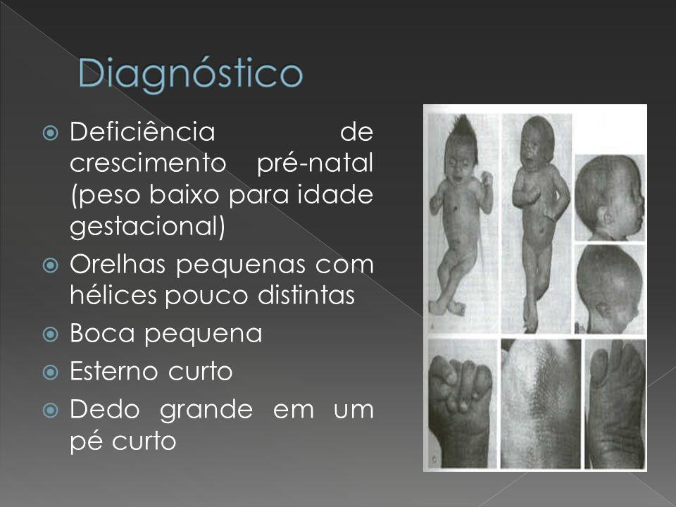 Diagnóstico Deficiência de crescimento pré-natal (peso baixo para idade gestacional) Orelhas pequenas com hélices pouco distintas.