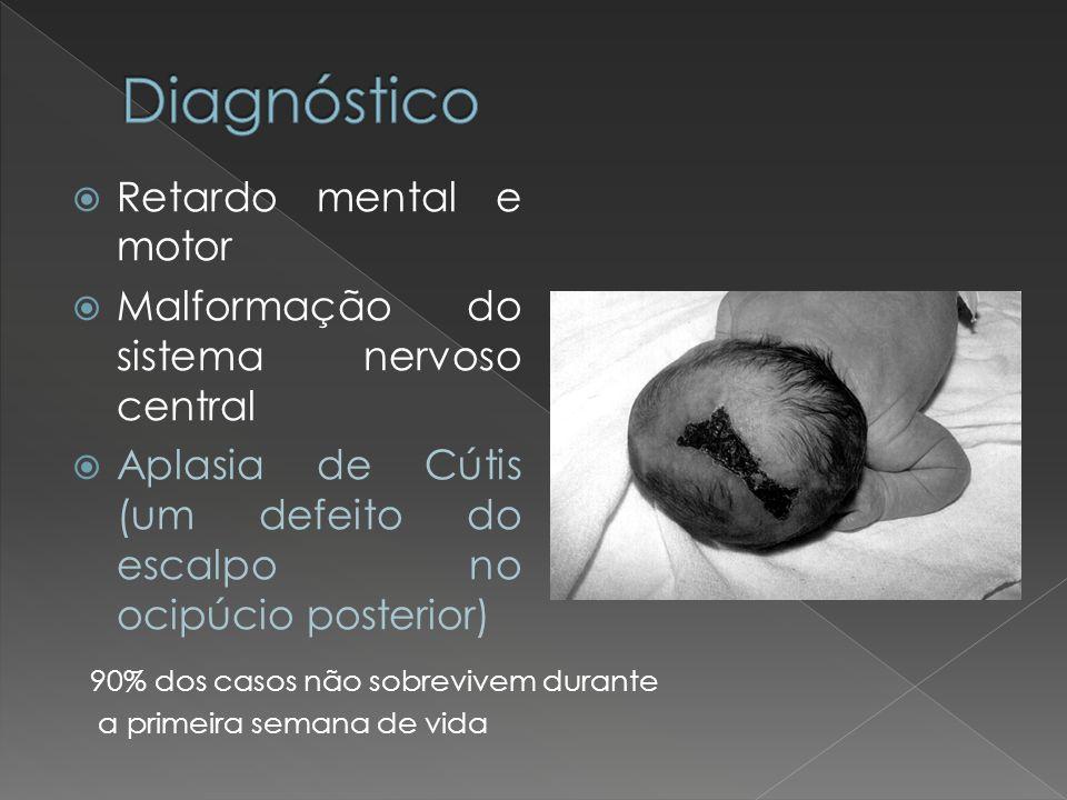 Diagnóstico Retardo mental e motor