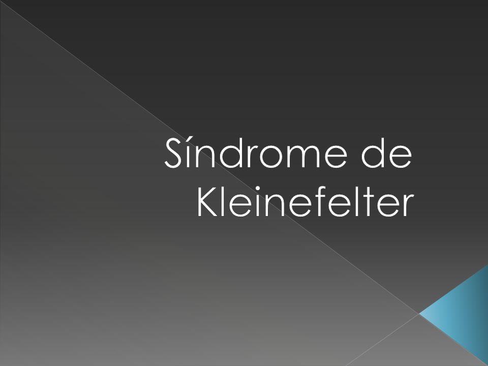 Síndrome de Kleinefelter