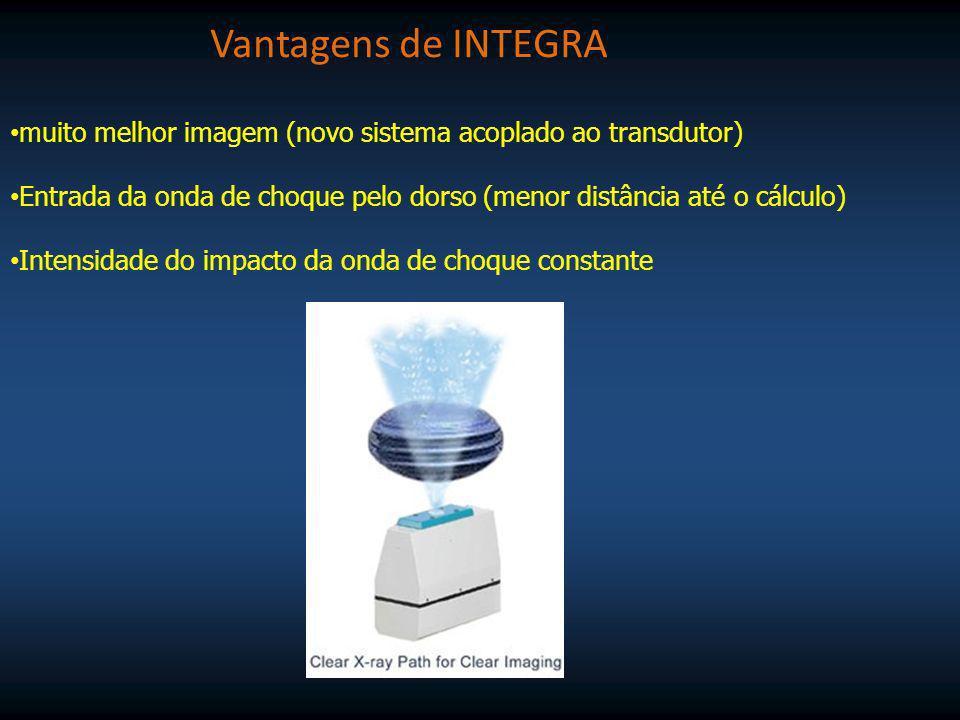 Vantagens de INTEGRAmuito melhor imagem (novo sistema acoplado ao transdutor) Entrada da onda de choque pelo dorso (menor distância até o cálculo)