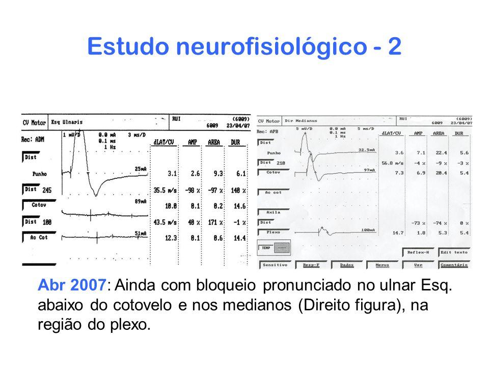 Estudo neurofisiológico - 2