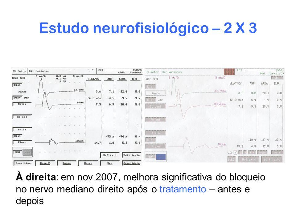 Estudo neurofisiológico – 2 X 3