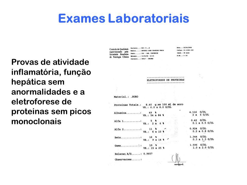 Exames Laboratoriais Provas de atividade inflamatória, função hepática sem anormalidades e a eletroforese de proteinas sem picos monoclonais.