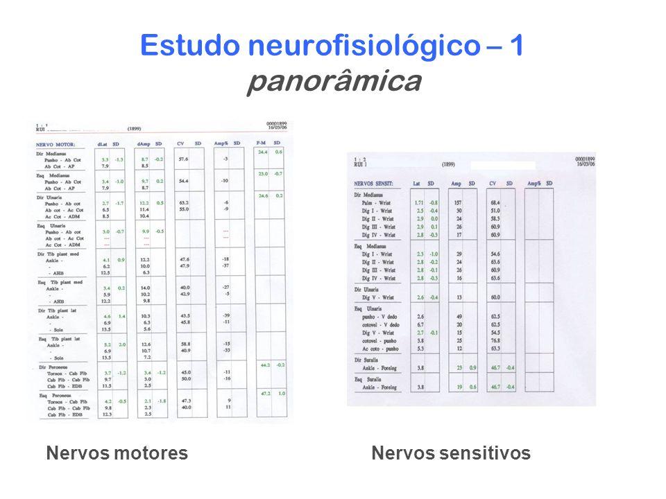 Estudo neurofisiológico – 1 panorâmica