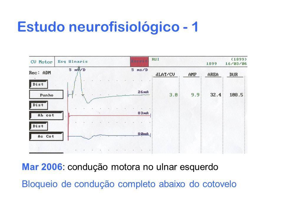 Estudo neurofisiológico - 1