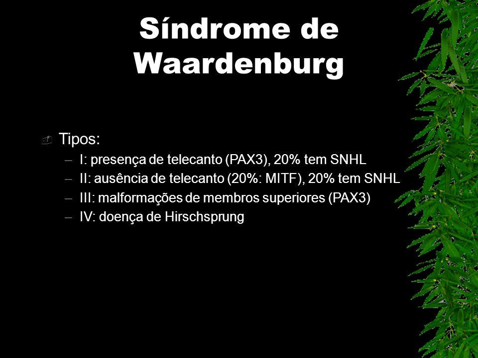 Síndrome de Waardenburg