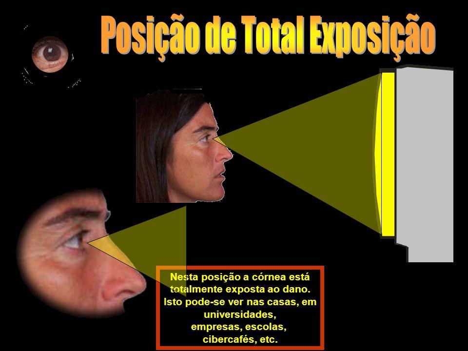 Posição de Total Exposição