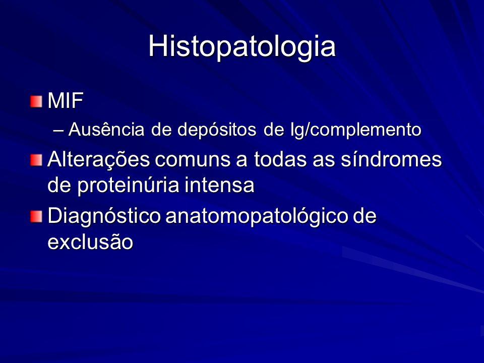 Histopatologia MIF. Ausência de depósitos de Ig/complemento. Alterações comuns a todas as síndromes de proteinúria intensa.