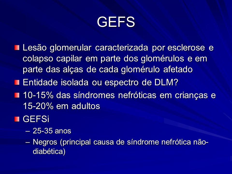 GEFS Lesão glomerular caracterizada por esclerose e colapso capilar em parte dos glomérulos e em parte das alças de cada glomérulo afetado.