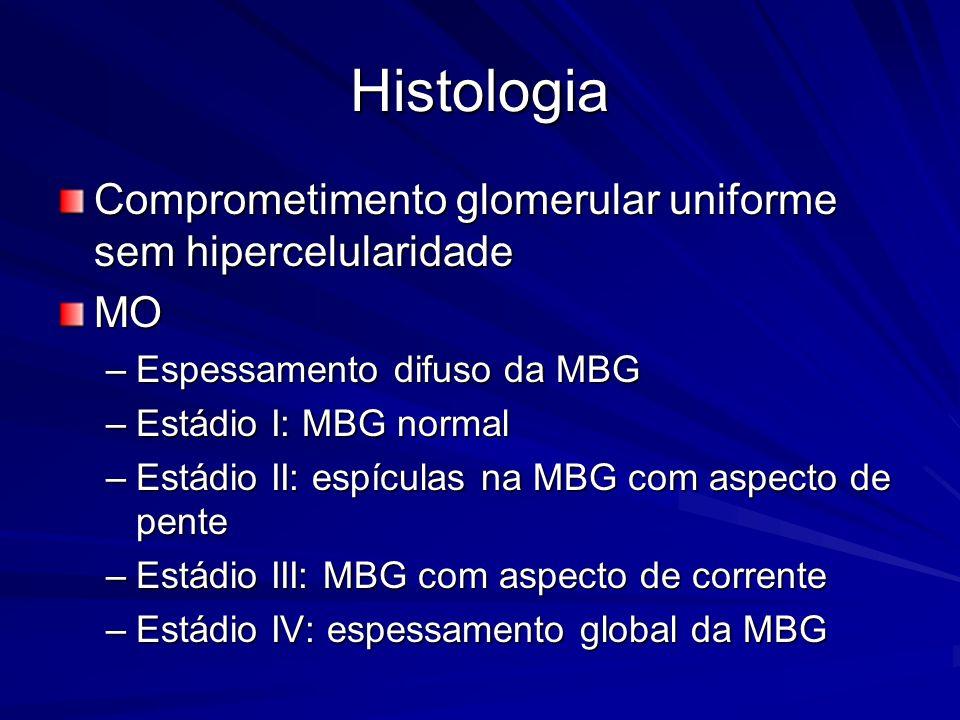 Histologia Comprometimento glomerular uniforme sem hipercelularidade