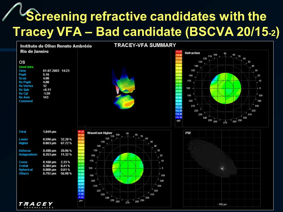 Screening refractive candidates with the Tracey VFA – Bad candidate (BSCVA 20/15-2)