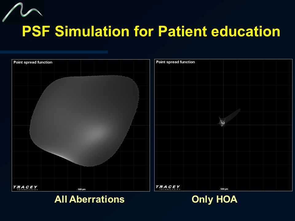 PSF Simulation for Patient education