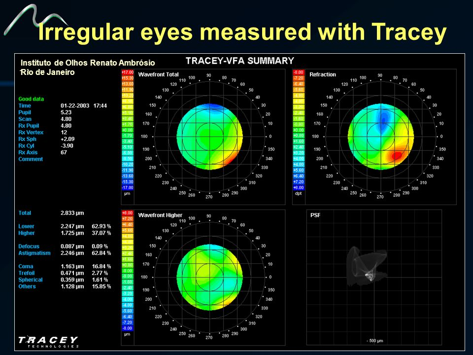 Irregular eyes measured with Tracey