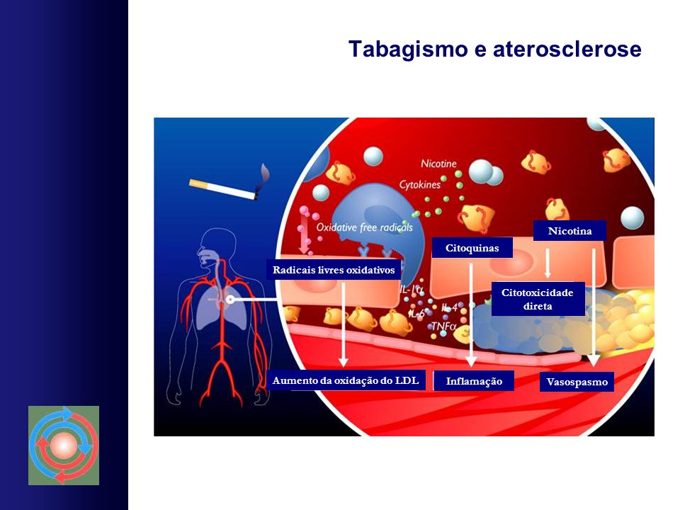 Tabagismo e aterosclerose