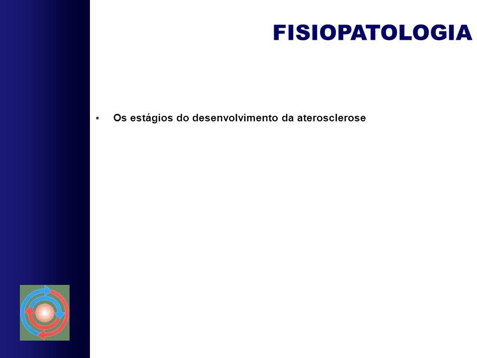 FISIOPATOLOGIA Os estágios do desenvolvimento da aterosclerose