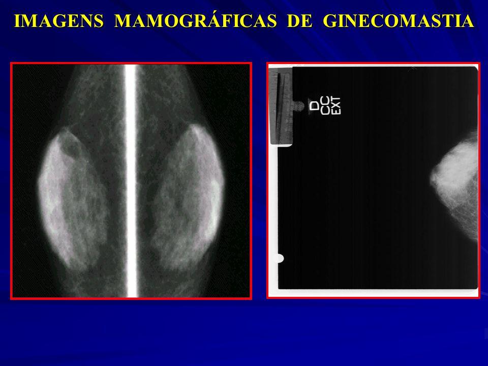 IMAGENS MAMOGRÁFICAS DE GINECOMASTIA