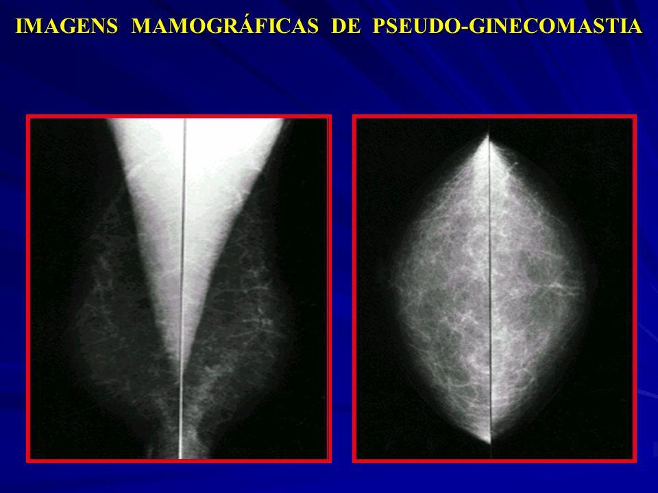 IMAGENS MAMOGRÁFICAS DE PSEUDO-GINECOMASTIA