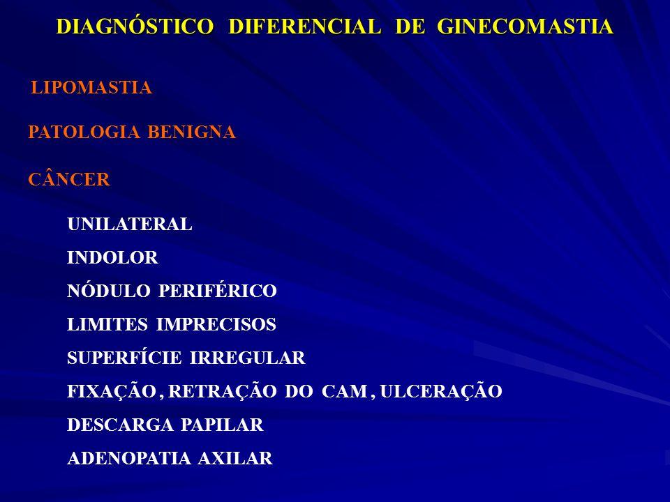 DIAGNÓSTICO DIFERENCIAL DE GINECOMASTIA