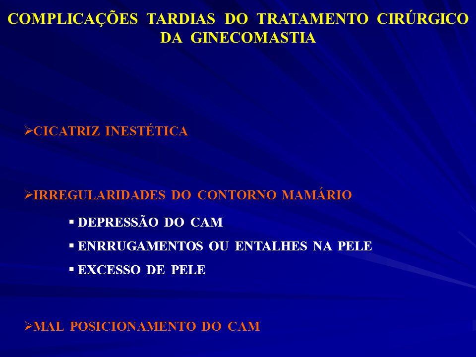 COMPLICAÇÕES TARDIAS DO TRATAMENTO CIRÚRGICO DA GINECOMASTIA