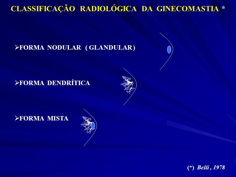 CLASSIFICAÇÃO RADIOLÓGICA DA GINECOMASTIA *
