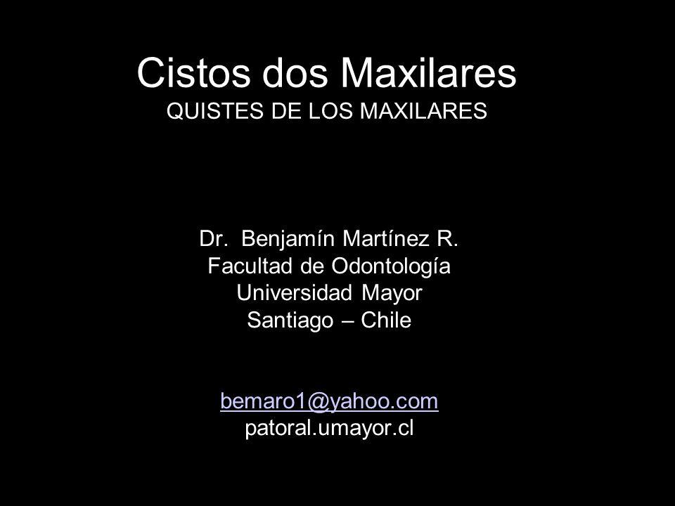 Cistos dos Maxilares QUISTES DE LOS MAXILARES