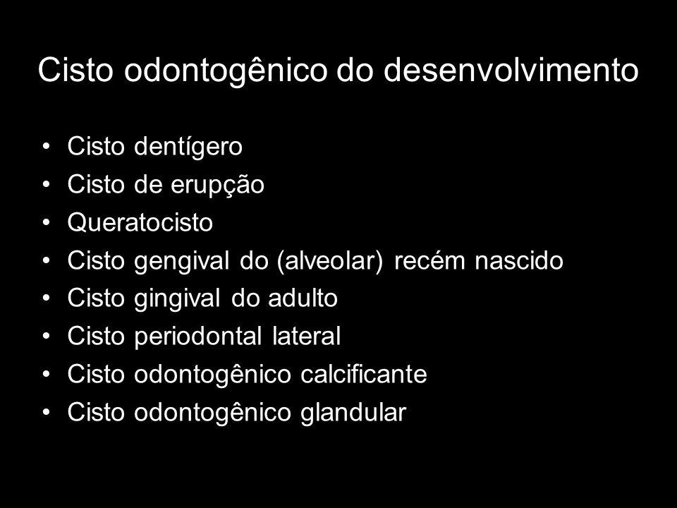 Cisto odontogênico do desenvolvimento