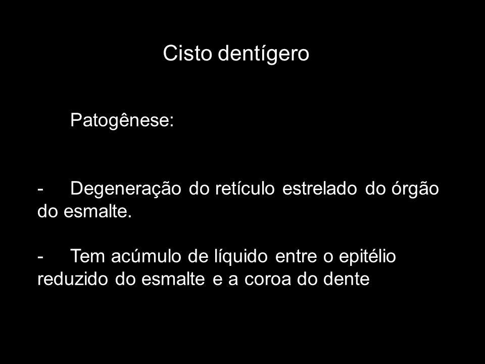 Cisto dentígero Patogênese: