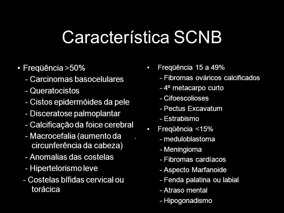 Característica SCNB Freqüência >50% - Carcinomas basocelulares