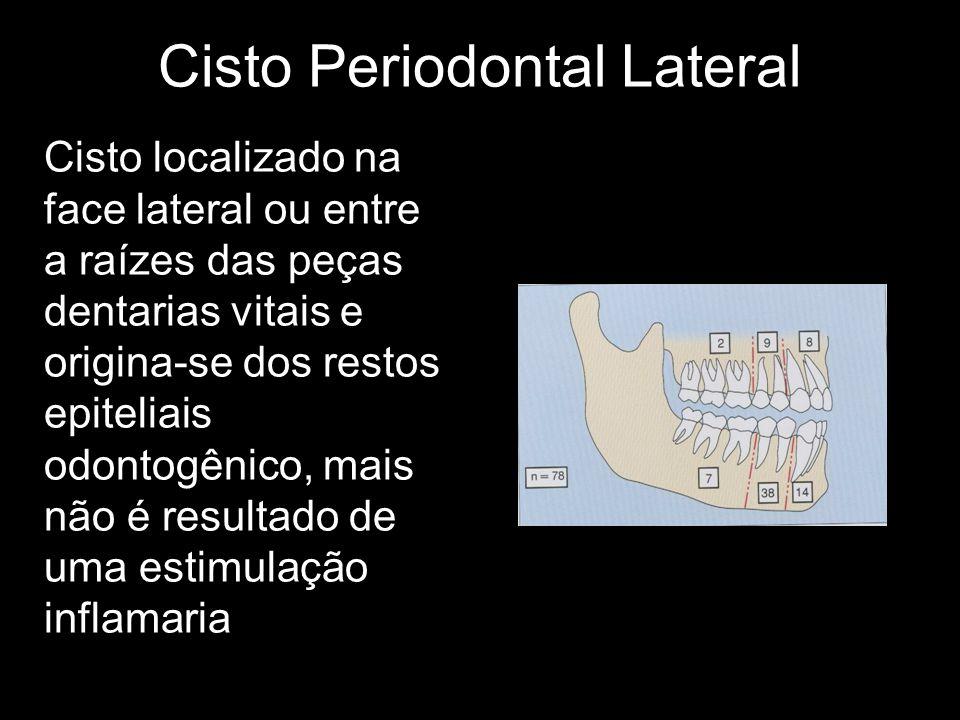 Cisto Periodontal Lateral