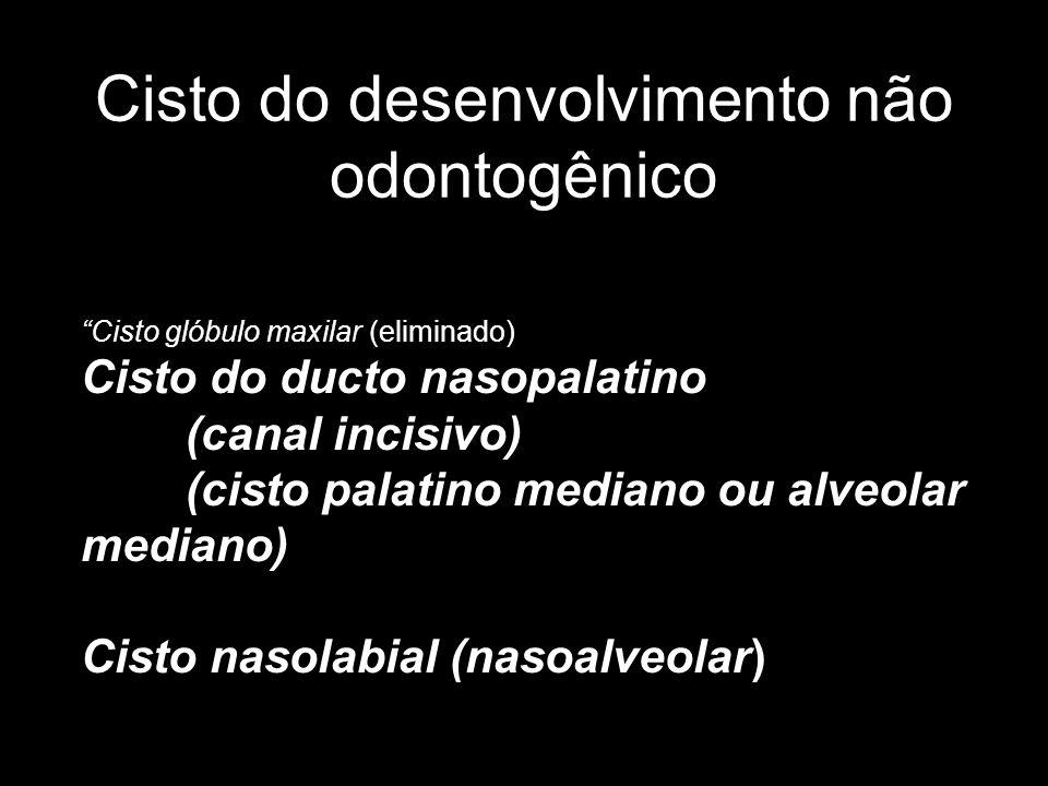 Cisto do desenvolvimento não odontogênico
