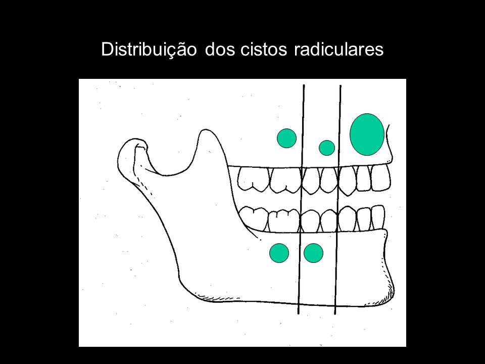 Distribuição dos cistos radiculares