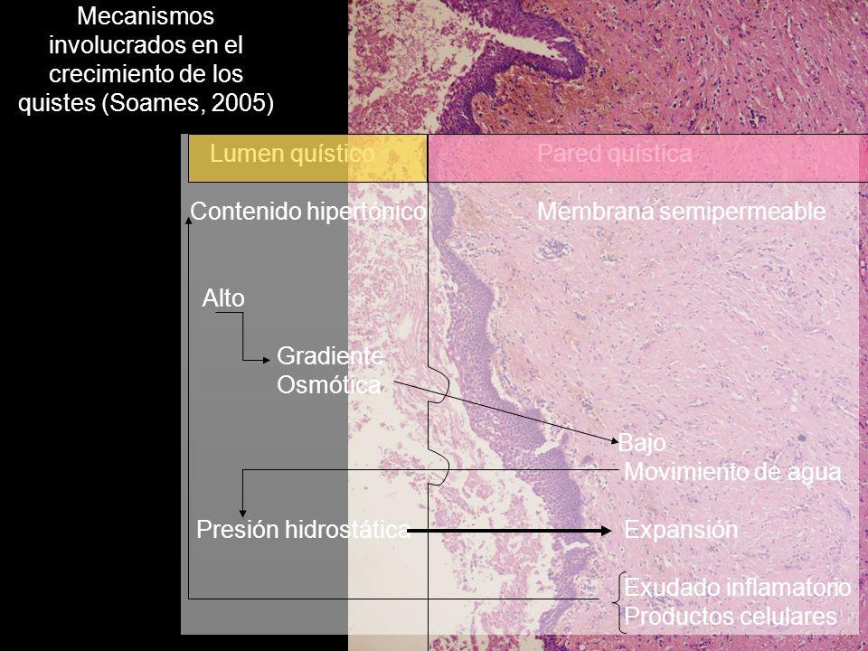 Mecanismos involucrados en el crecimiento de los quistes (Soames, 2005)