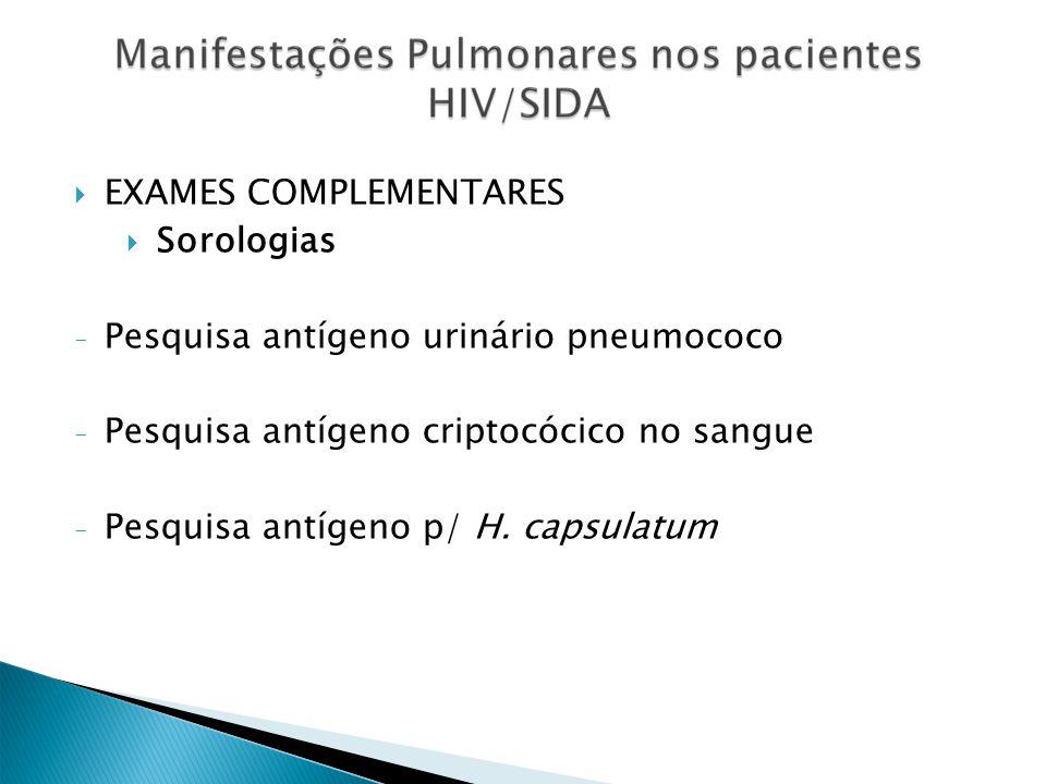 EXAMES COMPLEMENTARES Sorologias Pesquisa antígeno urinário pneumococo