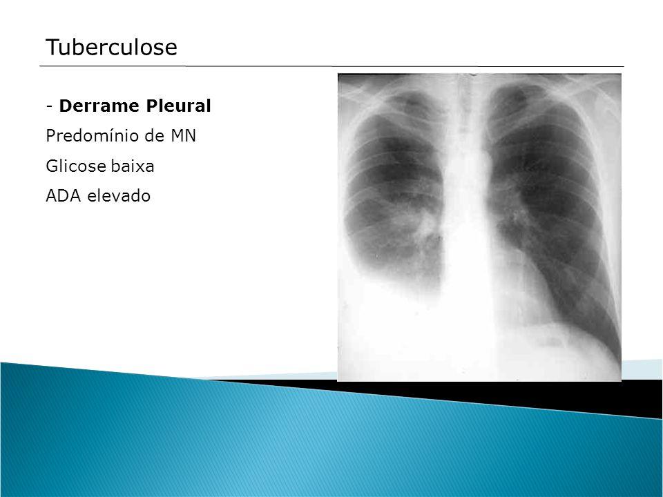 Tuberculose Derrame Pleural Predomínio de MN Glicose baixa ADA elevado