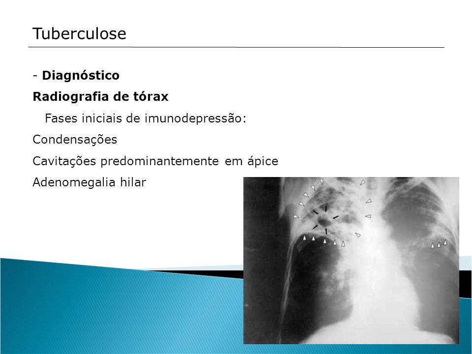 Tuberculose Diagnóstico Radiografia de tórax