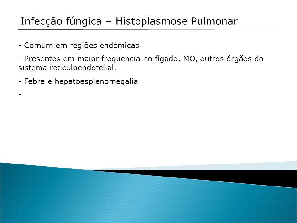 Infecção fúngica – Histoplasmose Pulmonar