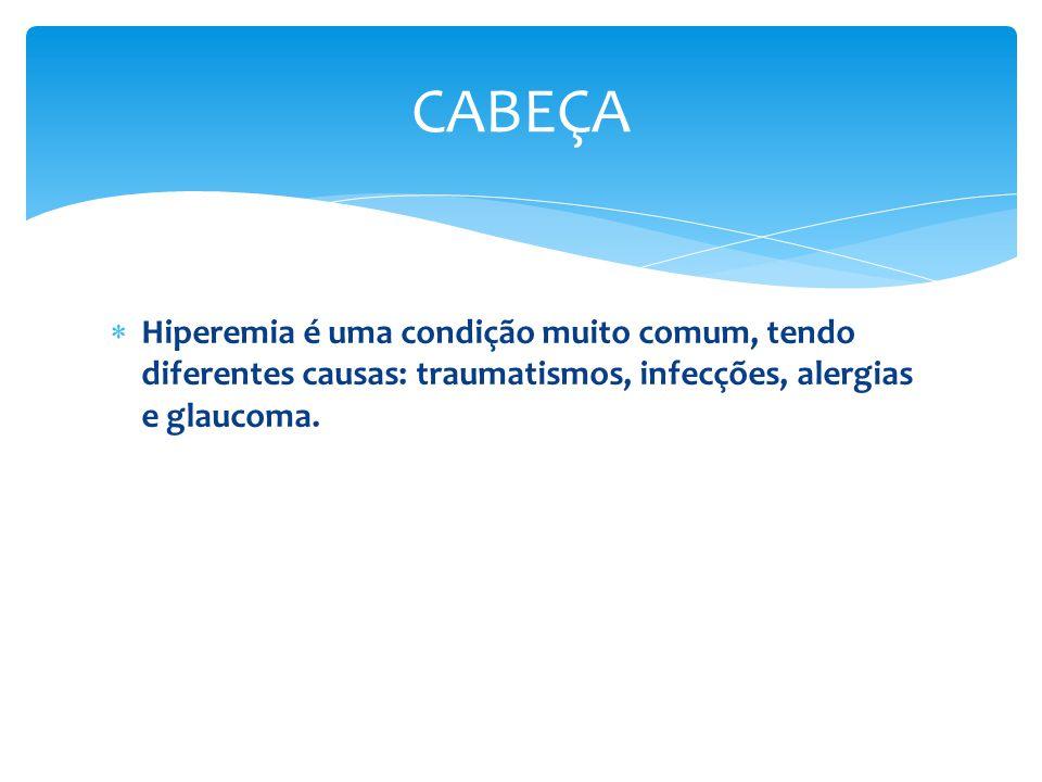 CABEÇA Hiperemia é uma condição muito comum, tendo diferentes causas: traumatismos, infecções, alergias e glaucoma.