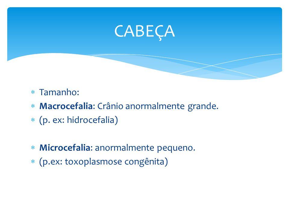 CABEÇA Tamanho: Macrocefalia: Crânio anormalmente grande.