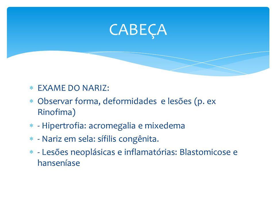 CABEÇA EXAME DO NARIZ: Observar forma, deformidades e lesões (p. ex Rinofima) - Hipertrofia: acromegalia e mixedema.