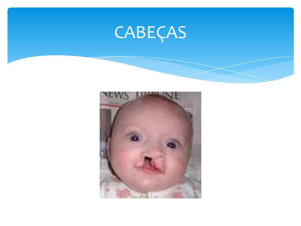 CABEÇAS