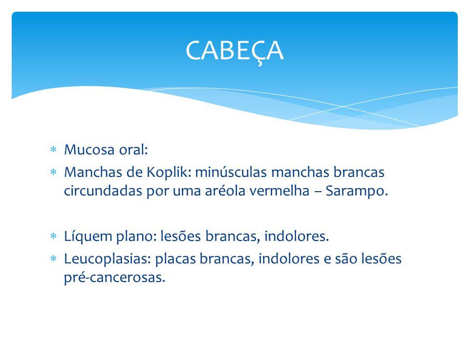 CABEÇA Mucosa oral: Manchas de Koplik: minúsculas manchas brancas circundadas por uma aréola vermelha – Sarampo.
