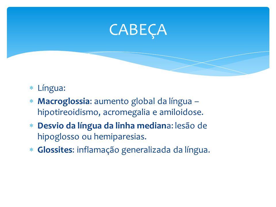CABEÇA Língua: Macroglossia: aumento global da língua – hipotireoidismo, acromegalia e amiloidose.