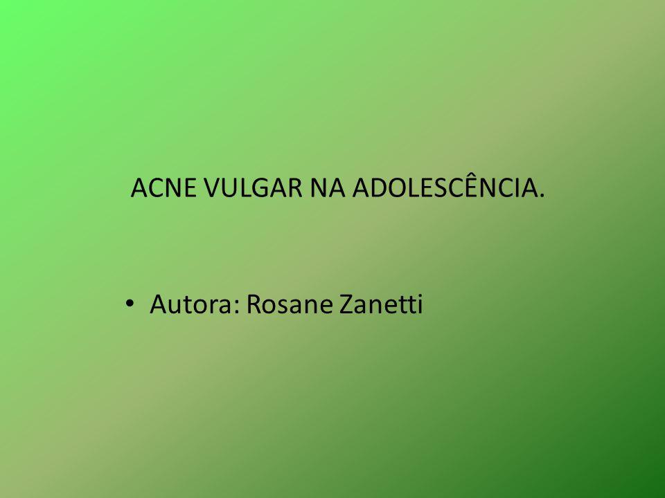 ACNE VULGAR NA ADOLESCÊNCIA.