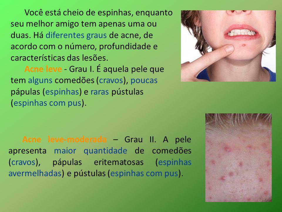 Você está cheio de espinhas, enquanto seu melhor amigo tem apenas uma ou duas. Há diferentes graus de acne, de acordo com o número, profundidade e características das lesões.