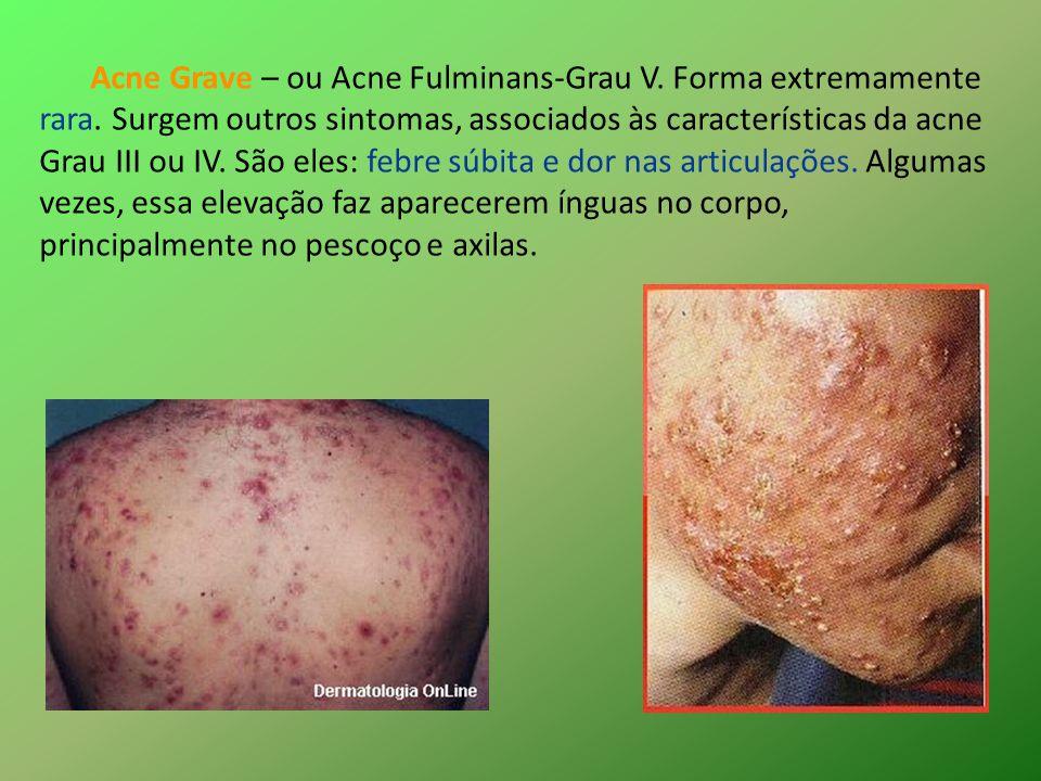 Acne Grave – ou Acne Fulminans-Grau V. Forma extremamente rara