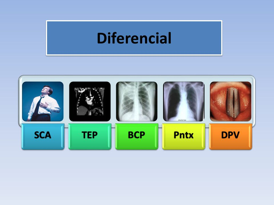 Diferencial SCA TEP BCP Pntx DPV