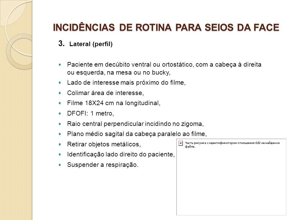 INCIDÊNCIAS DE ROTINA PARA SEIOS DA FACE