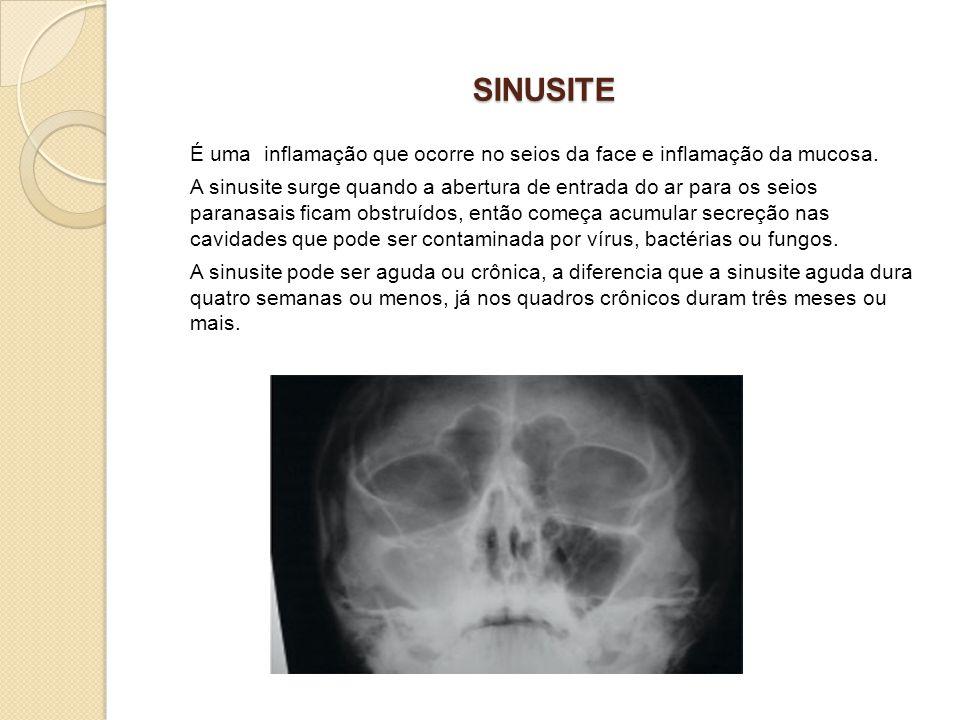 SINUSITE É uma inflamação que ocorre no seios da face e inflamação da mucosa.