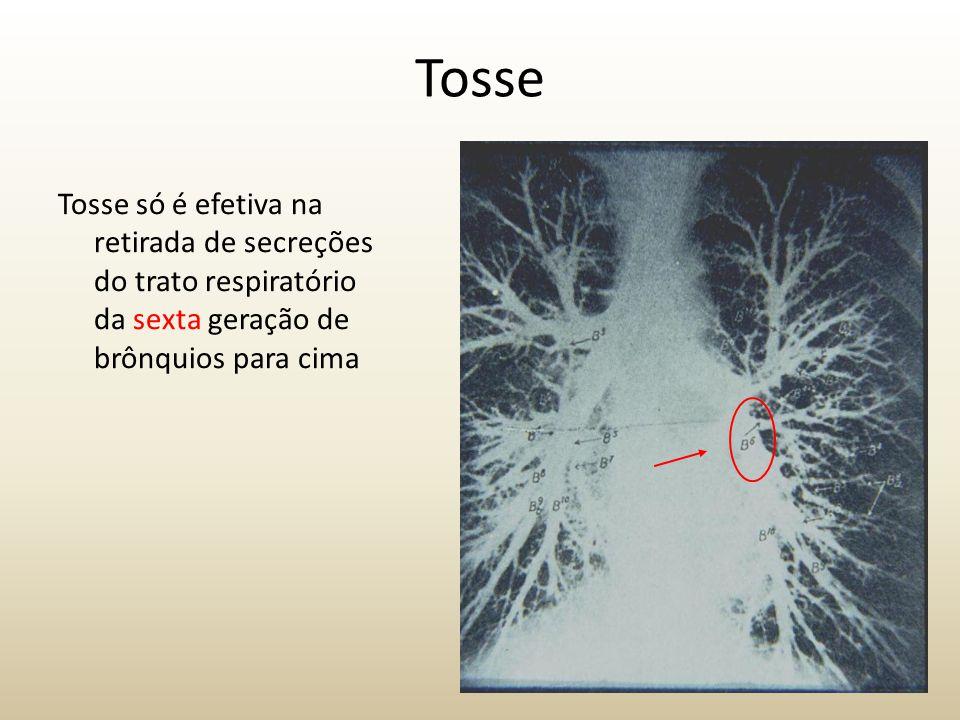 Tosse Tosse só é efetiva na retirada de secreções do trato respiratório da sexta geração de brônquios para cima.