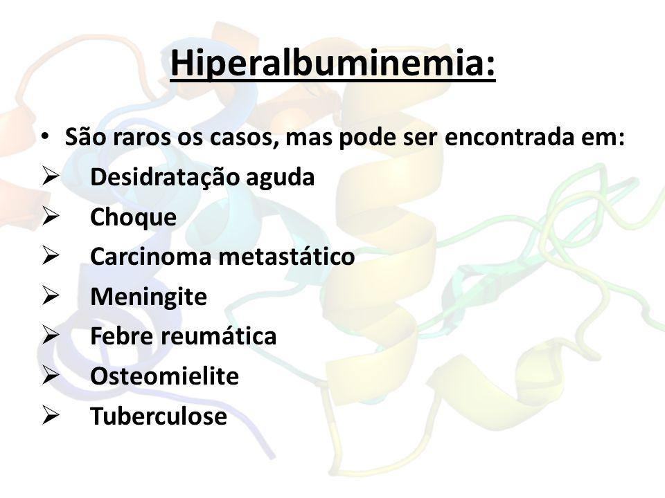 Hiperalbuminemia: São raros os casos, mas pode ser encontrada em: